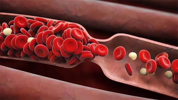Lưu thông máu kém dẫn đến nhiều biến chứng nguy hiểm