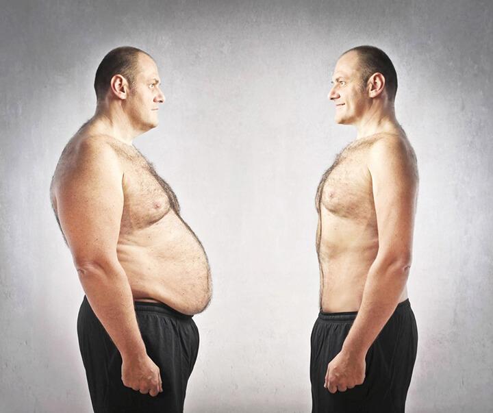 Nam giới có mỡ bụng dưới chiếm tỉ lệ cao trong cuộc sống hiện nay