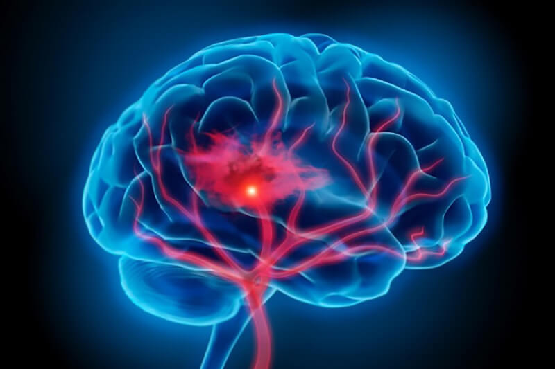 10 bài tập thể dục giúp lưu thông máu não hiệu quả mà đơn giản