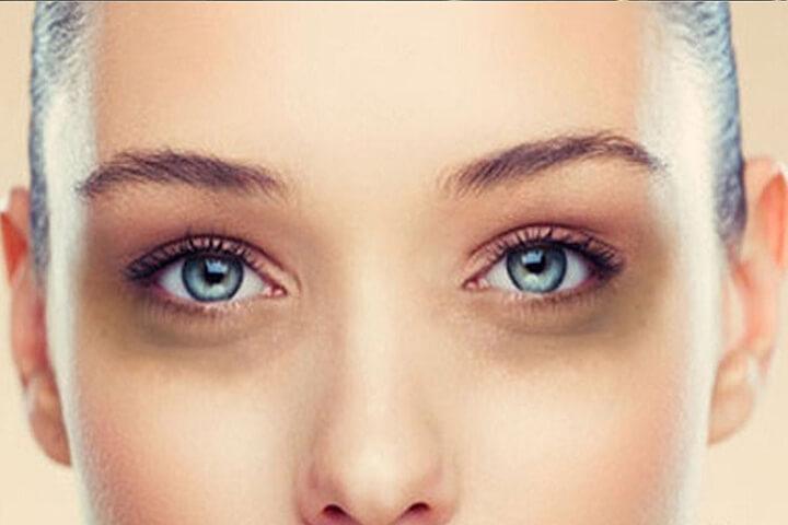 Mắt thâm quầng do nhiều nguyên nhân tạo nên