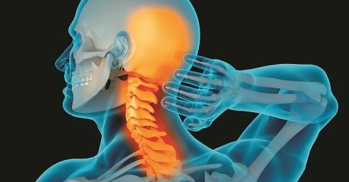 Thoái hóa đốt sống cổ là một trong những nguyên nhân gây ra đau vai gáy