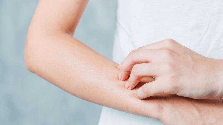 Vỏ cam giúp loại bỏ các triệu chứng dị ứng nhanh chóng